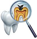 むし歯・根管治療