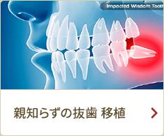 親知らずの抜歯 移植