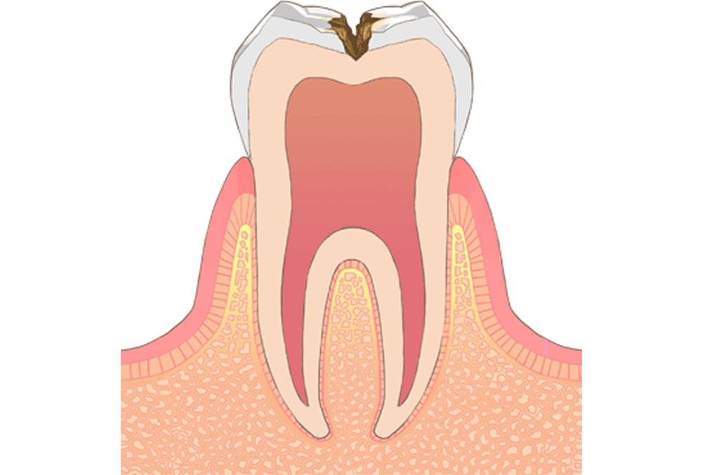 歯の中(象牙質)のむし歯