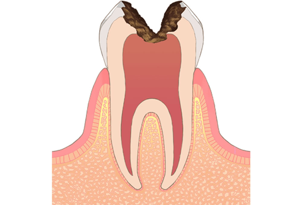 歯の神経のむし歯