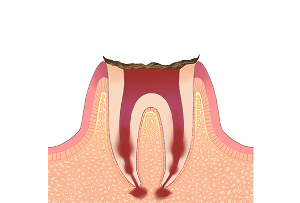 歯の根っこ部分だけになったむし歯