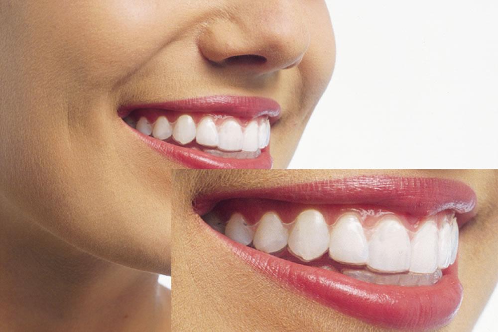 歯への負担