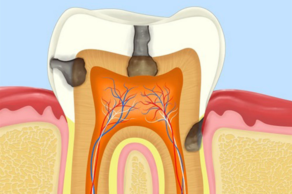 むし歯や歯周病