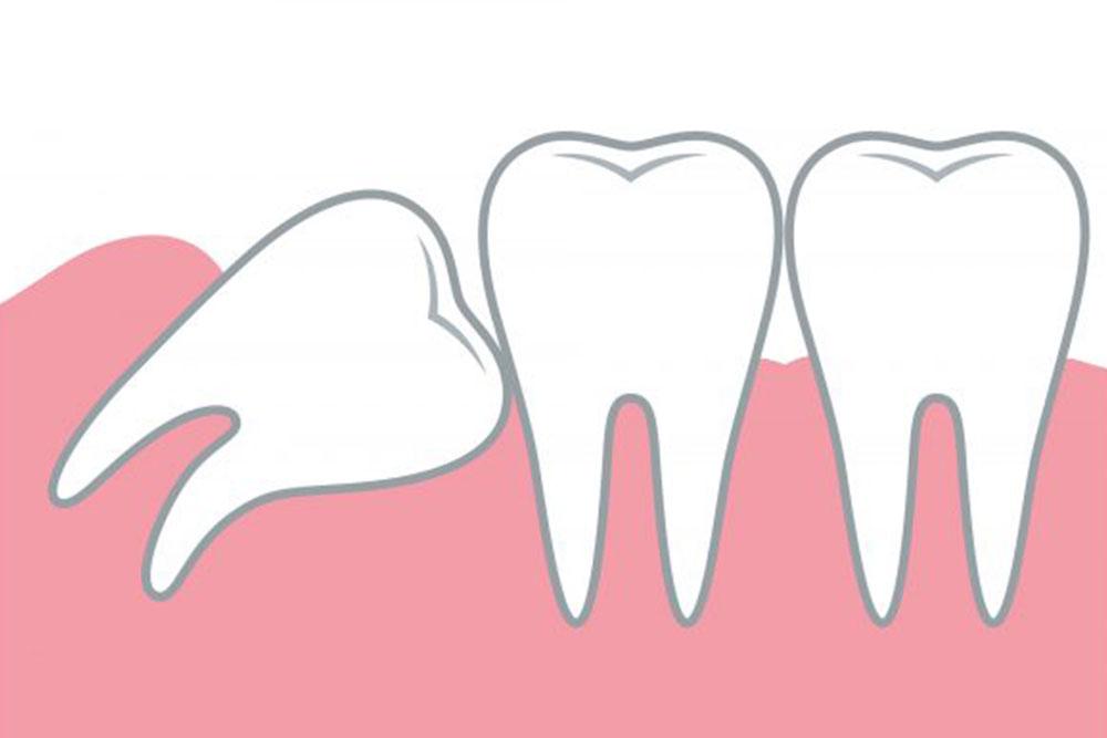 前方の歯に干渉
